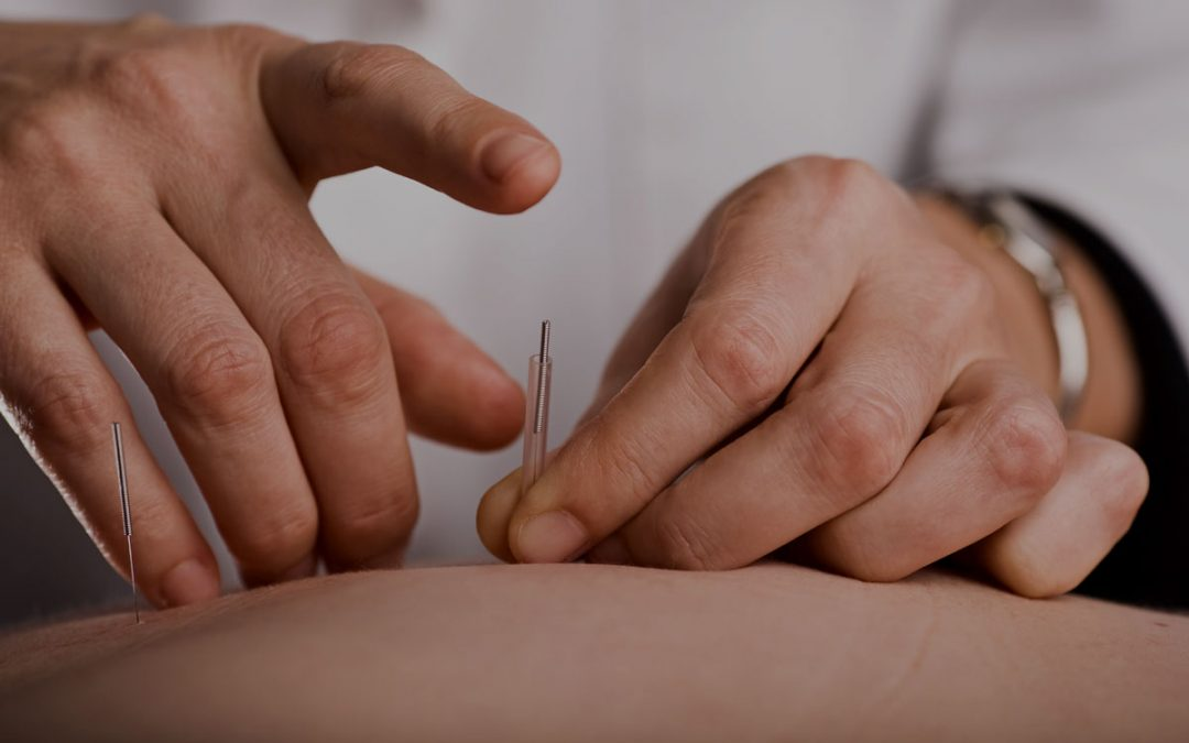 Two Breakthrough Treatments Using Contralateral Circuit Needling